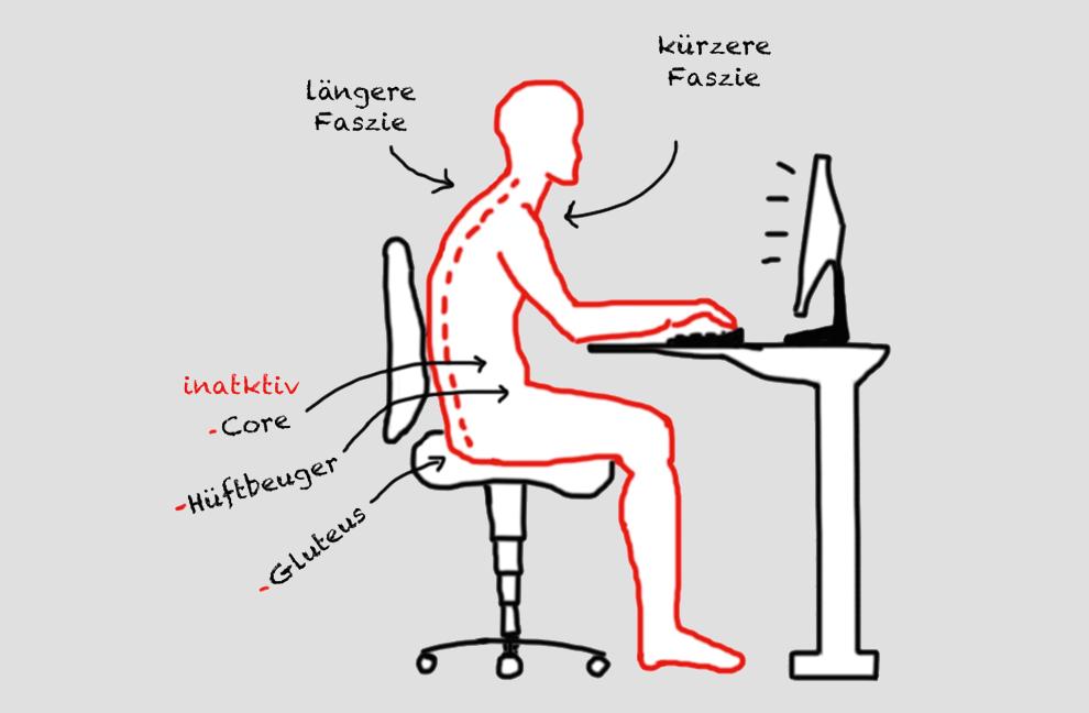 Beim Schreibtischtäter verlängert sich die dorsale (rückwärtige) Faszie, während sich die ventrale (bauchwärtige) Faszie verkürzt.