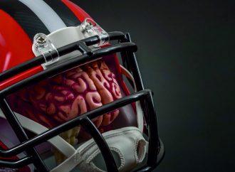 Gehirnerschütterungen vermeiden